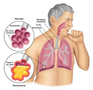 Aspiration pneumonia missed by medical team
