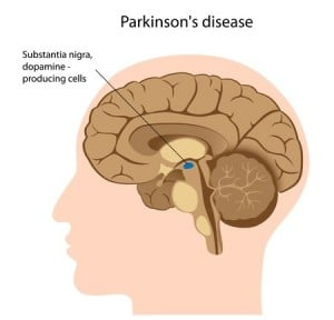 Internal Medicine Physician Prescribes Haldol to Parkinson's Patient