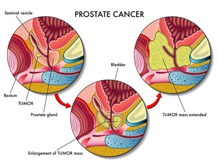 advanced prostate cancer case studies A review of epidemiologic studies of tomatoes, lycopene, and prostate cancer edward giovannucci channing laboratory, department of medicine brigham and women's hospital and harvard medical school, boston, massachusetts 02115 and department of nutrition, harvard school of public health, boston, massachusetts 02115.