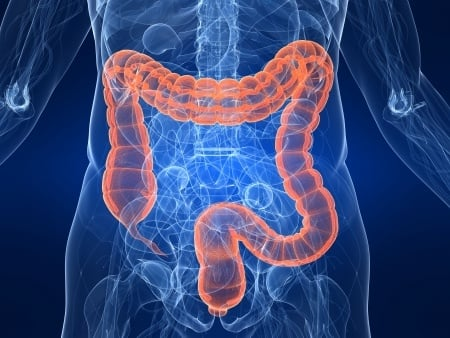 Doctors Fail To Identify Hole In Large Intestine