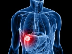 Doctors Fail to Inform Patient of Liver Cancer