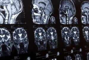 Delay in Stroke Treatment Permanently Incapacitates Patient