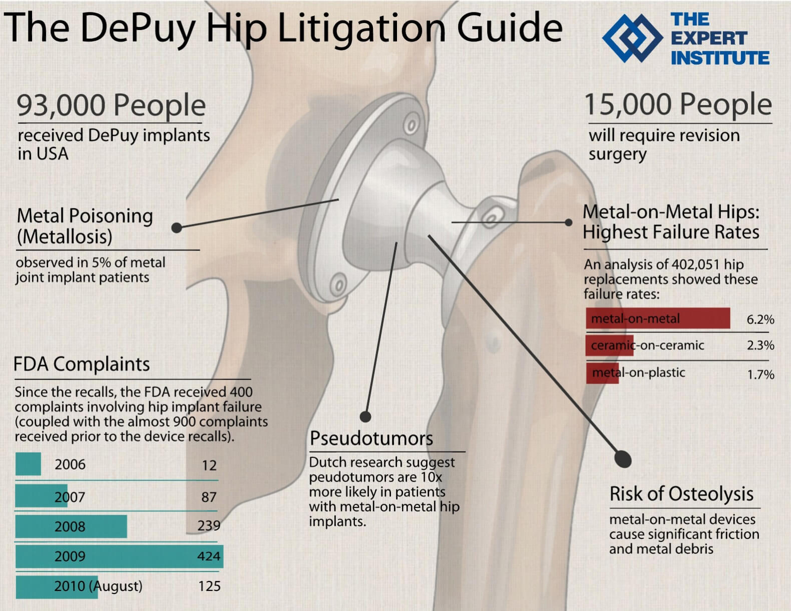 DePuy Hip Expert Witness: A Litigation Guide