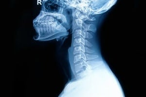 Neurosurgery Experts Discuss Cervical Spine Injury Caused by Vehicle Rollover Accident